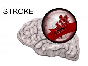 chiropractic-stroke